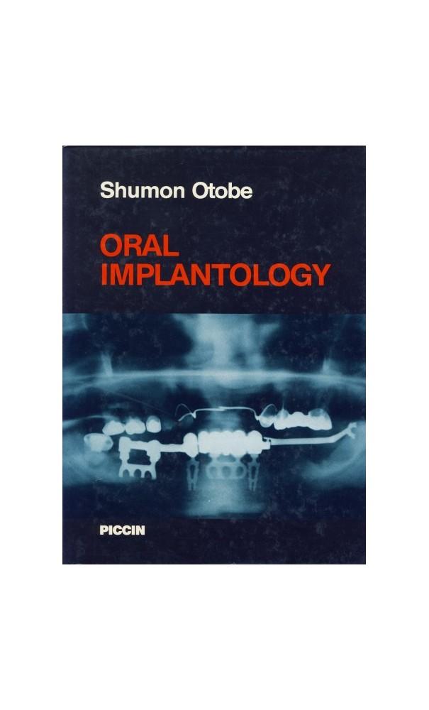 Desuxma oral implantology implant dentistry