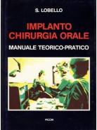 Implanto - Chirurgia Orale - Manuale teorico-pratico