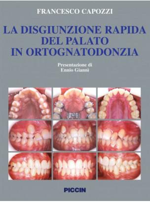 La disgiunzione rapida del palato in ortognatodonzia
