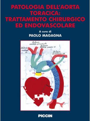 Patologia dell'aorta toracica: trattamento chirurgico ed endovascolare