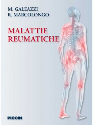 Malattie reumatiche