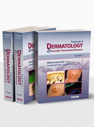 Textbook of dermatology and sexually transmitted diseases