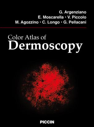 Color Atlas of Dermoscopy