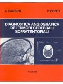 Diagnostica angiografica dei tumori cerebrali sopra-tentoriali