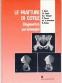 Le fratture di cotile. Diagnostica per immagini